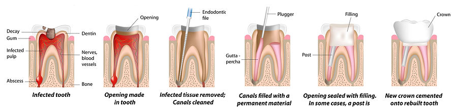 Root canal trwatment/therapy step-by-step procedures