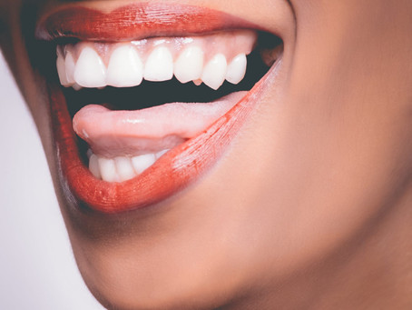 DIY TEETH WHITENING: 7 COMMON QUESTIONS ANSWERED