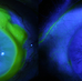 Initial presentation of bilateral peripheral ulcerative keratitis; OD >>OS showing extent of active keratitis with staining defects OU, all secondary to severe relapsing polychondritis.