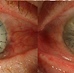 Patient at last exam (2/14/20) 9 weeks status post emergency transplant OD, showing clear stable 9.5mm eccentric limbal based graft, 4+ mature white cataracts OU and complete PUK control OU
