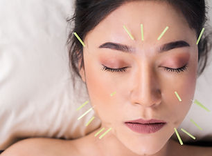 young woman undergoing acupuncture treat