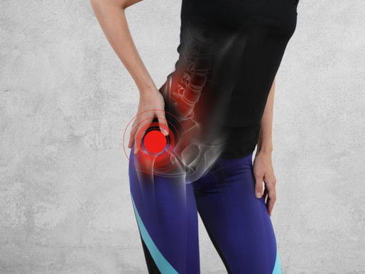 Do You Have Hip Pain, Sciatica, Piriformis Syndrome or Just a Pain in the Butt?