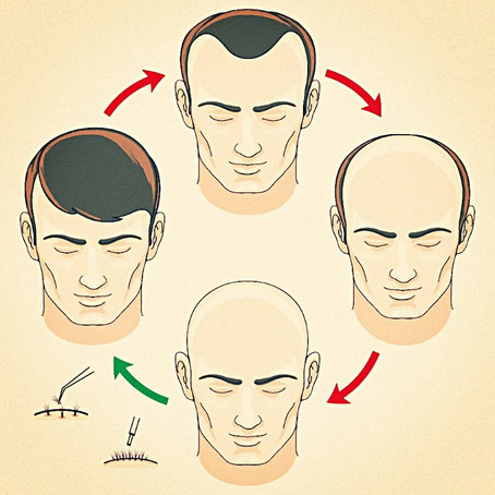 Halt Hair Loss Or Baldness With These Foods & Beverages