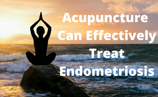 Acupuncture Can Effectively Treat Endometriosis