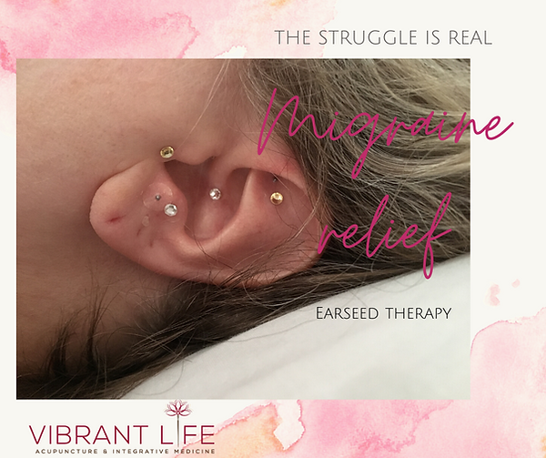 Migraine relief with ear seeds