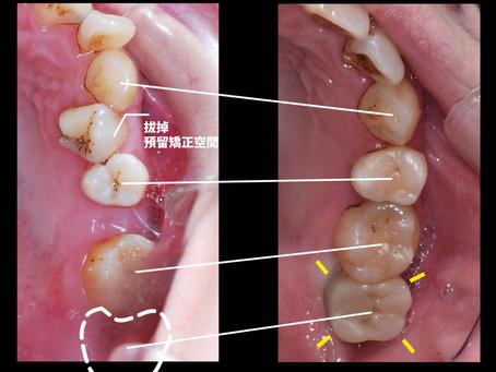 有可能矯正加上植牙嗎?