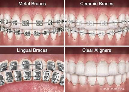 types-of-orthodontic-appliances.jpg