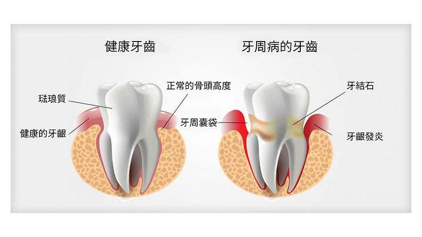 牙周病的牙齒.jpg