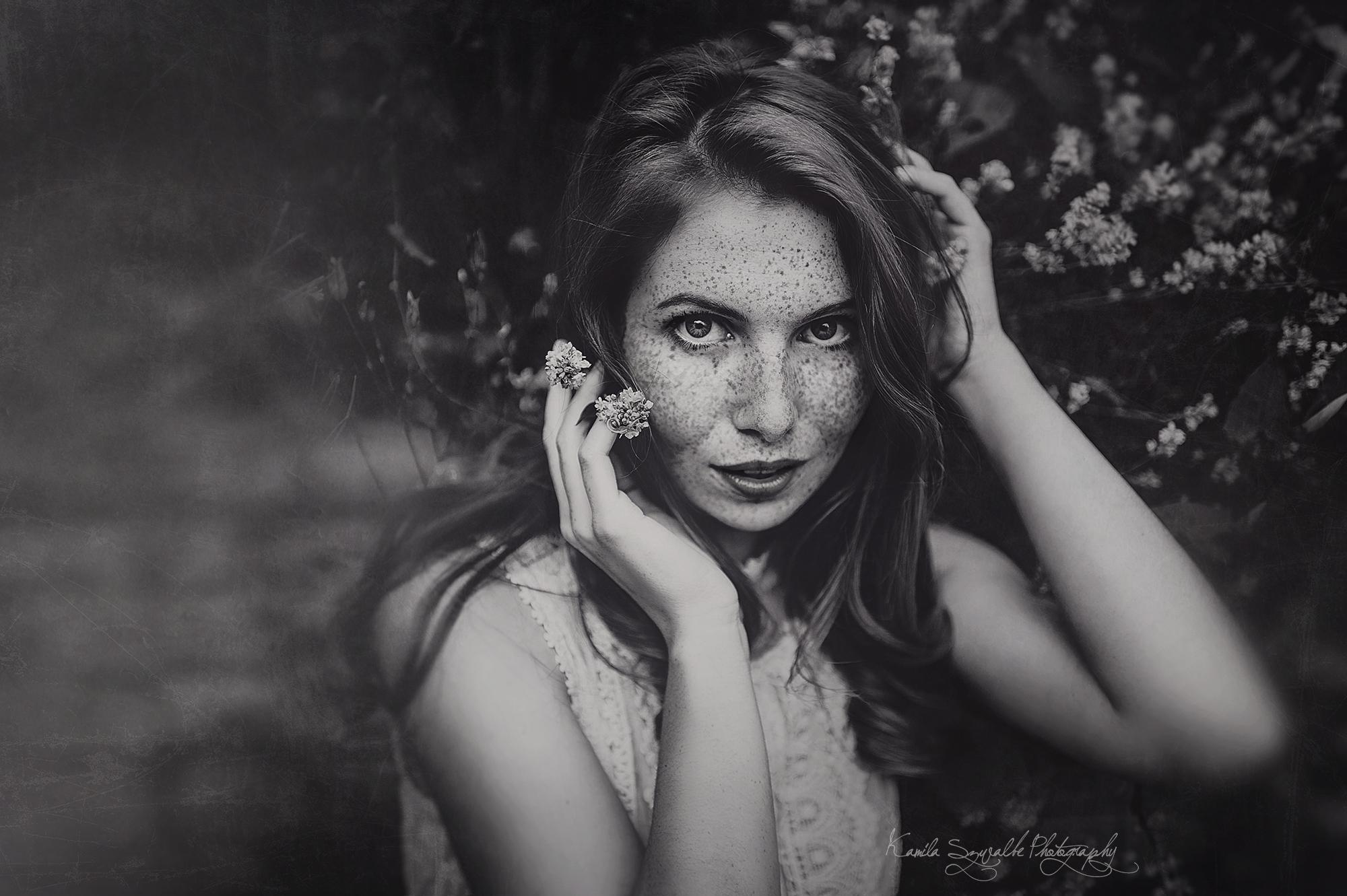 model freckles