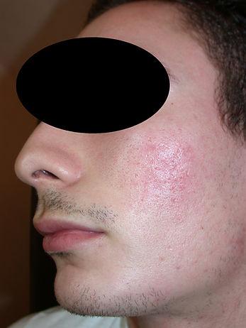 laser fractionné, CO2, cicatrices acné en pic à glace