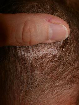 cicatrice trichophytique