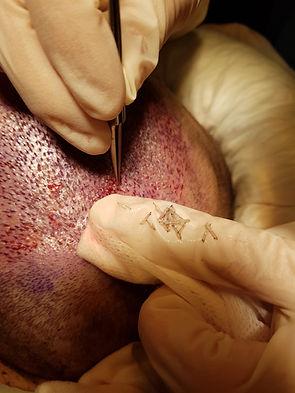 implantation des unités folliculaires