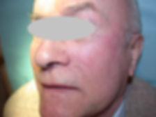 carcinome épidermoide joue plastie