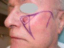Carcinome épidermoide joue lambeau