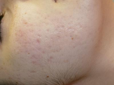 cicatrices acné laser fractionné CO2