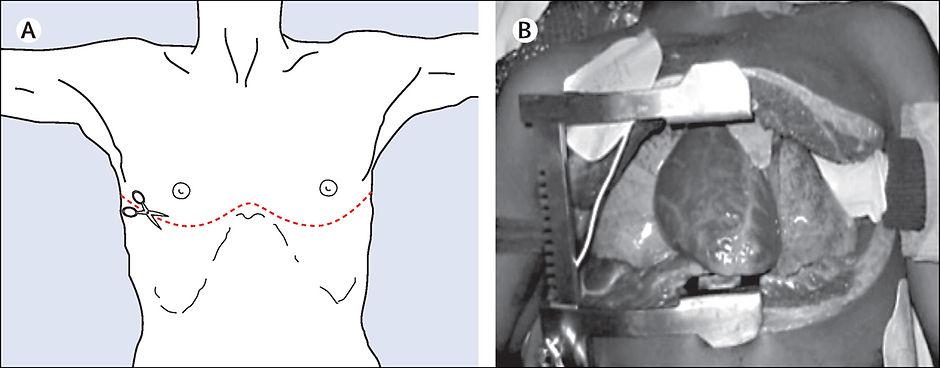 Thoracotomy 1.jpg