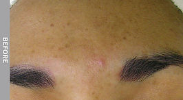 Hyperpigmentation-Before.jpg