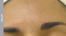 Hyperpigmentation-After.jpg