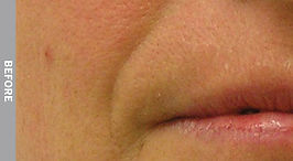 Nasolabial-Folds-Before.jpg