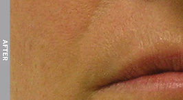 Nasolabial-Folds-After.jpg