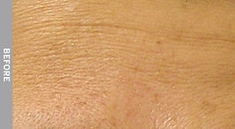 Fine-Lines-And-Wrinkles-Before.jpg