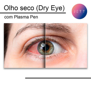 Tratamento de Olho Seco (Dry Eye) usando Jett Plasma com o aplicador Plasma Pen