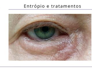 Entrópio e tratamentos com Jett Plasma Lift Medical com aplicador Oftalmológico