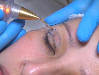 Oftalmologia estética: o que usar para melhorar os resultados
