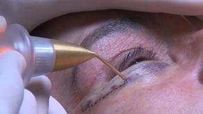 Jett Plasma no Congresso Internacional de Oculoplástica