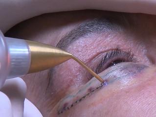 Blefaroplastia não invasiva x outros procedimentos