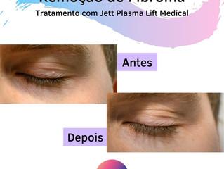 Dermatologia: Remoção de fibroma com Jett Plasma Lift Medical
