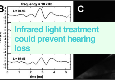 Preventing hear loss in mice
