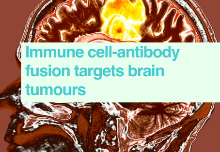 New way to target brain tumours