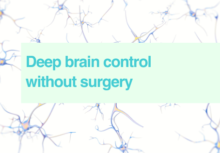 Brain control without surgery
