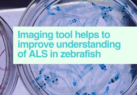 Imaging zebrafish for ALS research