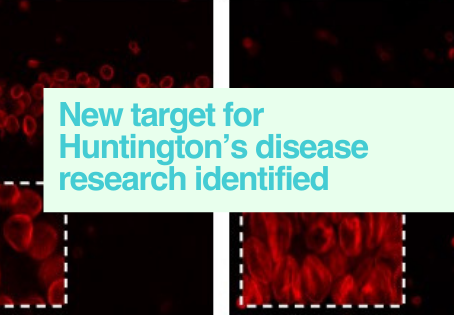 Huntington's disease research