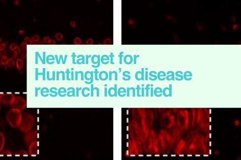 Huntington's disease research