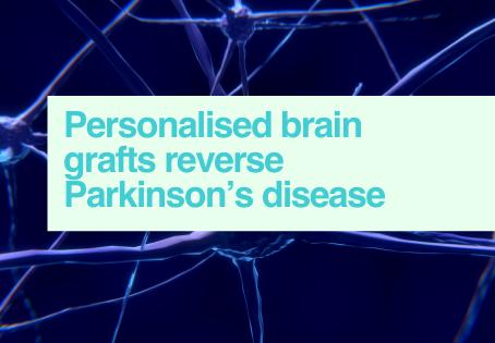 Personalised brain grafts