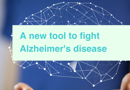 Alzheimer's new treatment target
