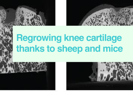 Cartilage repair models