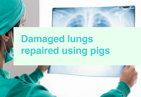Repairing lungs