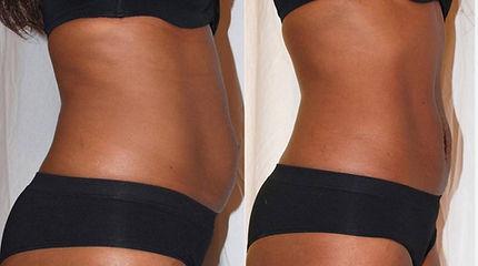 cavitation-body-contouring-treatment-before-after-client.jpg
