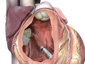 Kabellose Therapie: Spezialisten des UKSH implantieren Micro-Herzschrittmacher
