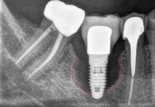 The Periodontitis of Dental Implants : Peri Implantitis