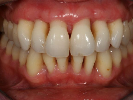 Modern Lifestyle & Increased Stress lead to Periodontitis  - The new Public Enemy