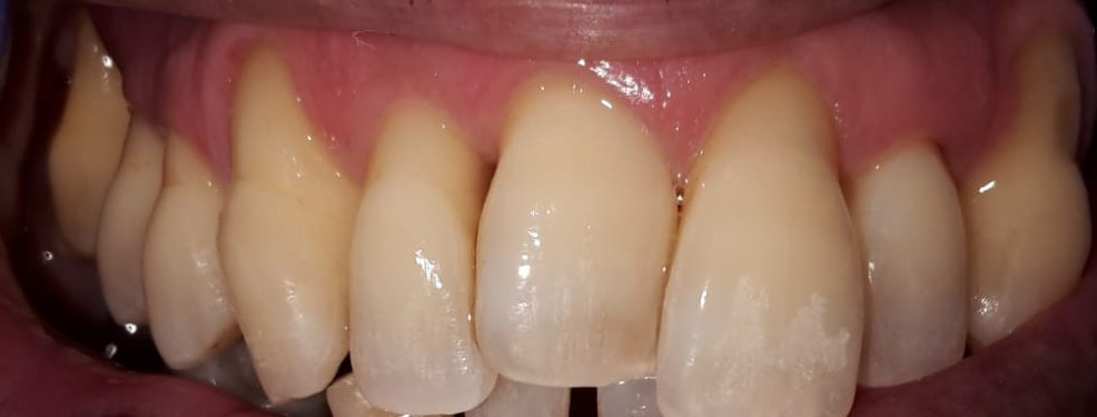 Patient Using Only Electric Toothbrush for 15 Years