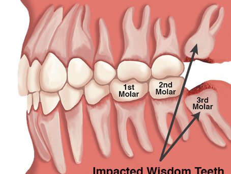 Wisdom Teeth - When and Why to Extract them