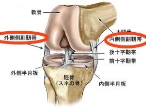 MCL損傷(内側側副靭帯損傷)とLCL損傷(外側側副靭帯損傷)