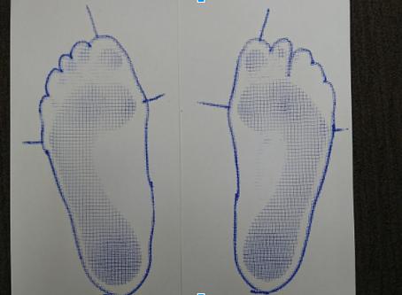 足趾の変形について