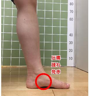 有痛性外脛骨とSLJ病